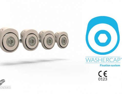 ABANZA gains CE mark for the WasherCap TM device.